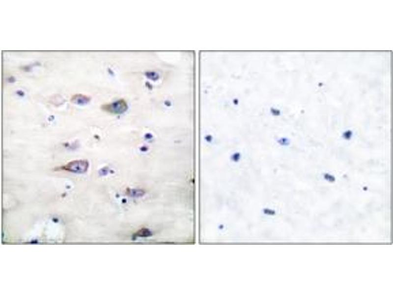 Immunohistochemistry (IHC) image for anti-Glutamate Receptor, Ionotropic, AMPA 2 (GRIA2) (pSer880), (AA 834-883) antibody (ABIN1531853)