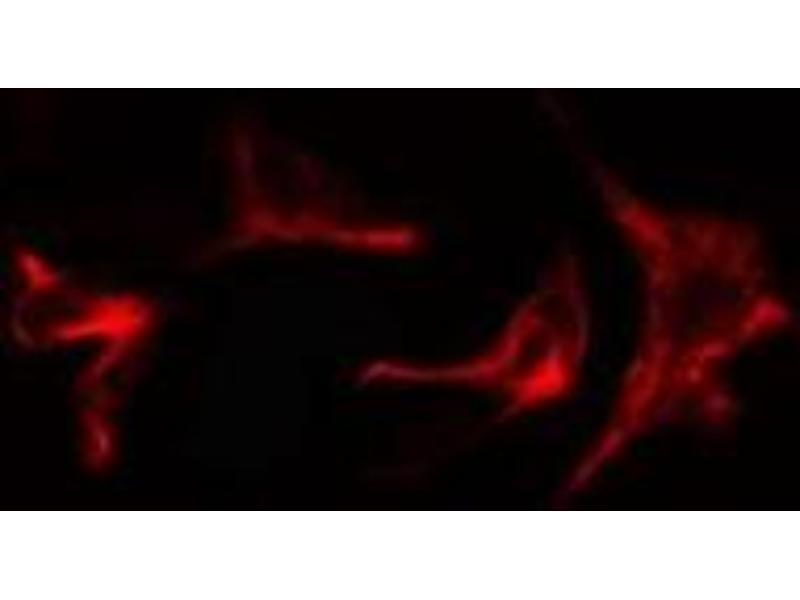 Immunofluorescence (fixed cells) (IF/ICC) image for anti-AKT1 Substrate 1 (Proline-Rich) (AKT1S1) antibody (ABIN6259870)