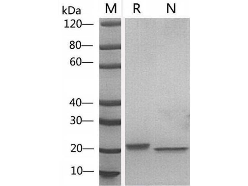 Image no. 3 for Leukemia Inhibitory Factor (LIF) (AA 24-203) (Active) protein (ABIN2018198)