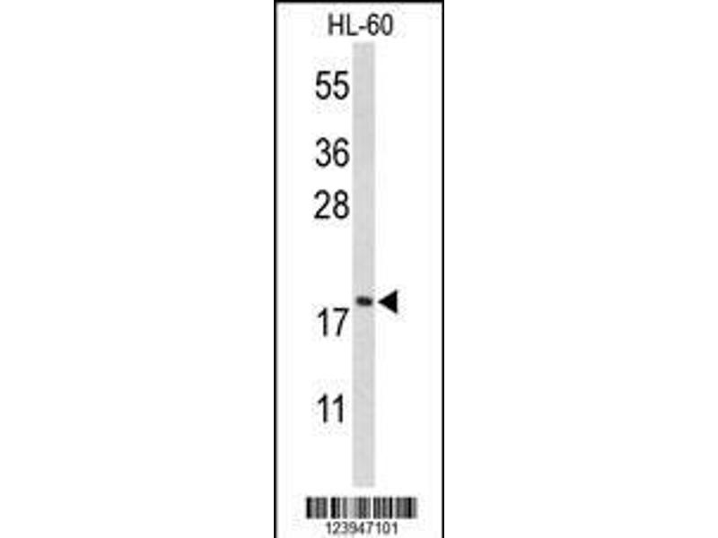 Western Blotting (WB) image for anti-Cofilin 1 (Non-Muscle) (CFL1) (AA 70-98), (Center) antibody (ABIN650759)