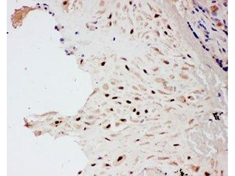 Immunohistochemistry (IHC) image for anti-PIAS1 antibody (Protein Inhibitor of Activated STAT, 1) (AA 636-651) (ABIN3032369)