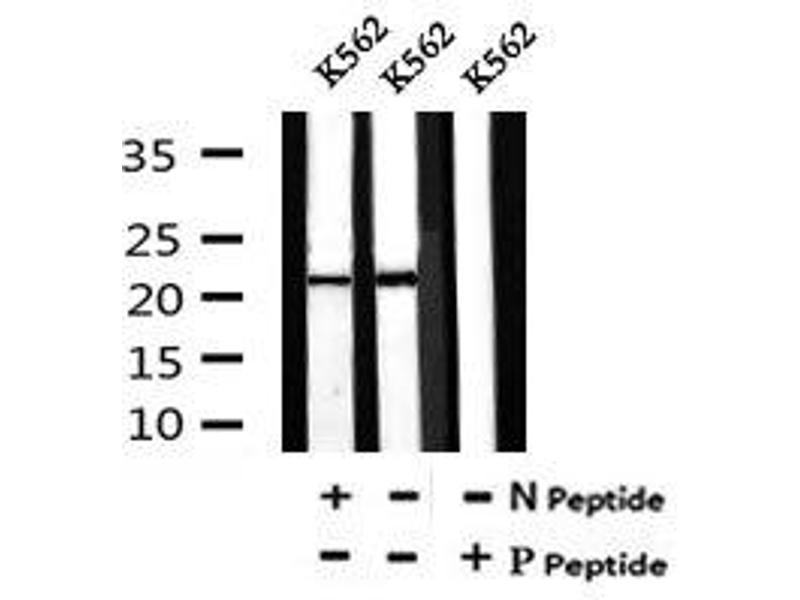 Image no. 1 for anti-BCL2-Like 11 (Apoptosis Facilitator) (BCL2L11) (pSer98) antibody (ABIN6269657)