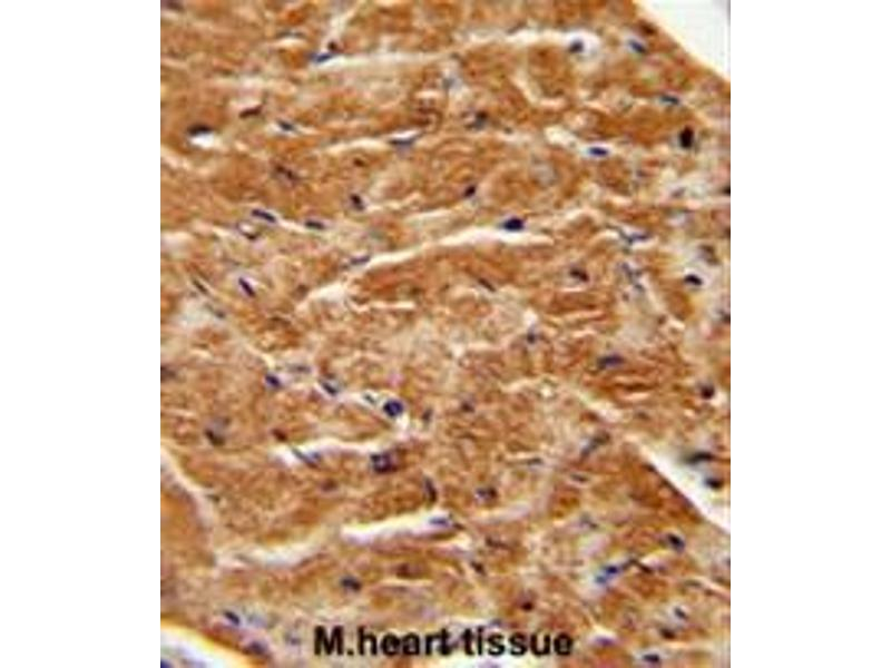 Immunohistochemistry (Paraffin-embedded Sections) (IHC (p)) image for anti-FGF7 antibody (Fibroblast Growth Factor 7) (AA 64-94) (ABIN952314)