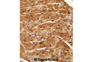 Immunohistochemistry (Paraffin-embedded Sections) (IHC (p)) image for anti-Fibroblast Growth Factor 7 (FGF7) (AA 64-94), (Middle Region) antibody (ABIN952314)