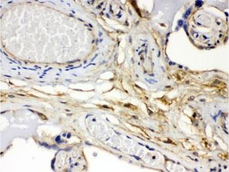 Image no. 2 for anti-Fibroblast Growth Factor 1 (Acidic) (FGF1) antibody (ABIN4951017)