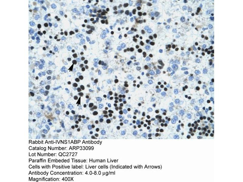 Immunohistochemistry (IHC) image for anti-Influenza Virus NS1A Binding Protein (IVNS1ABP) (N-Term) antibody (ABIN2777748)