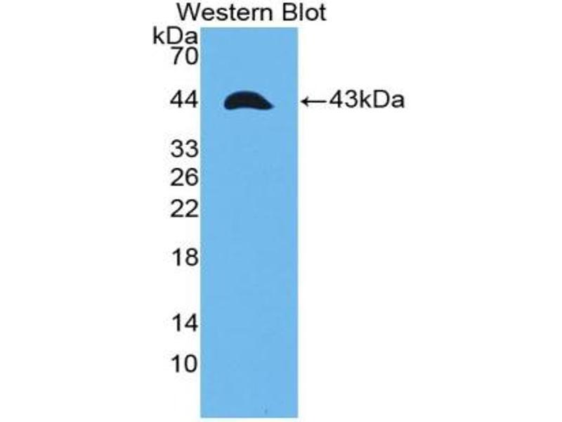 Western Blotting (WB) image for anti-Tumor Necrosis Factor Receptor Superfamily, Member 12A (TNFRSF12A) (AA 24-126) antibody (ABIN5014478)