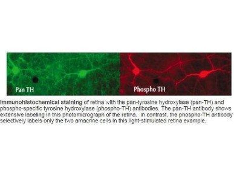 Immunohistochemistry (IHC) image for anti-Tyrosine Hydroxylase (TH) (pSer40) antibody (ABIN152518)