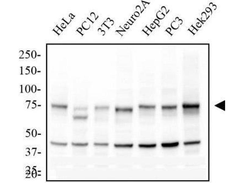 Western Blotting (WB) image for anti-CHUK antibody (conserved Helix-Loop-Helix Ubiquitous Kinase) (ABIN252647)