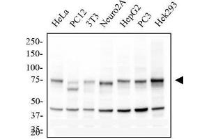 Western Blotting (WB) image for anti-conserved Helix-Loop-Helix Ubiquitous Kinase (CHUK) antibody (ABIN252647)