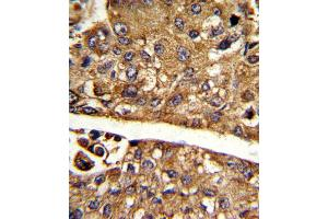 Image no. 1 for anti-Malate Dehydrogenase 1, NAD (Soluble) (MDH1) (AA 286-314), (C-Term) antibody (ABIN5537094)