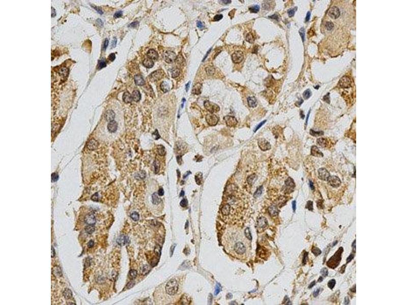 Immunohistochemistry (IHC) image for anti-Mitogen-Activated Protein Kinase 10 (MAPK10) antibody (ABIN1873623)