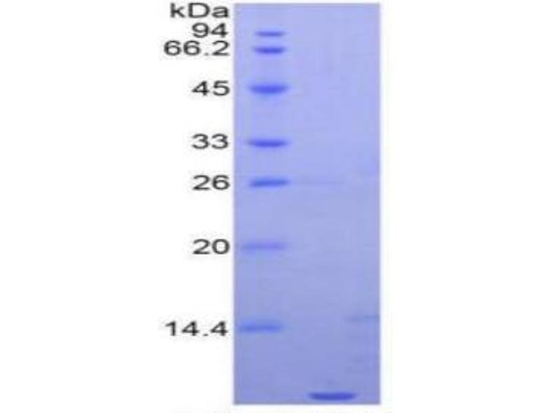 SDS-PAGE (SDS) image for Apolipoprotein C-I (APOC1) ELISA Kit (ABIN6730889)