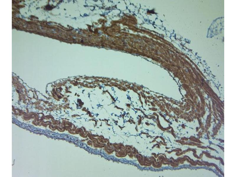 Immunohistochemistry (IHC) image for anti-Discs, Large Homolog 1 (Drosophila) (DLG1) (AA 2-50) antibody (ABIN571847)