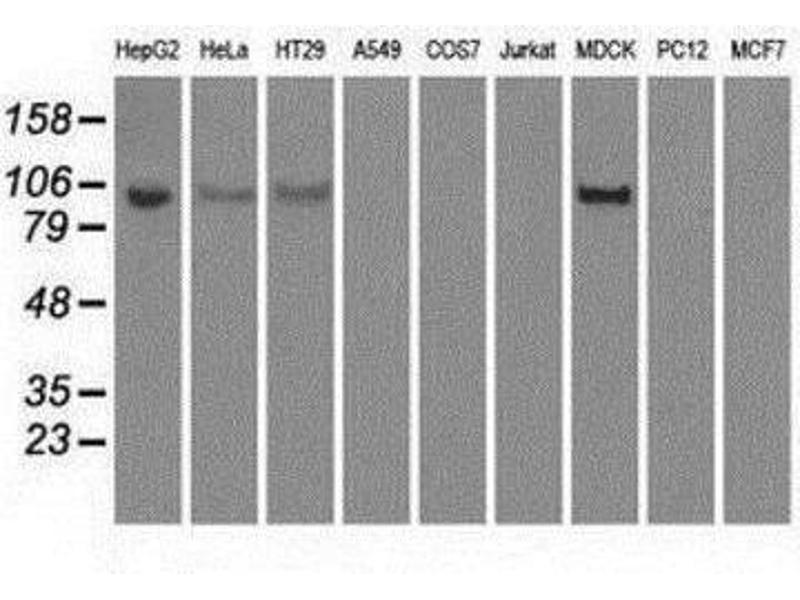 Western Blotting (WB) image for anti-Hexokinase 2 (HK2) antibody (ABIN4317175)
