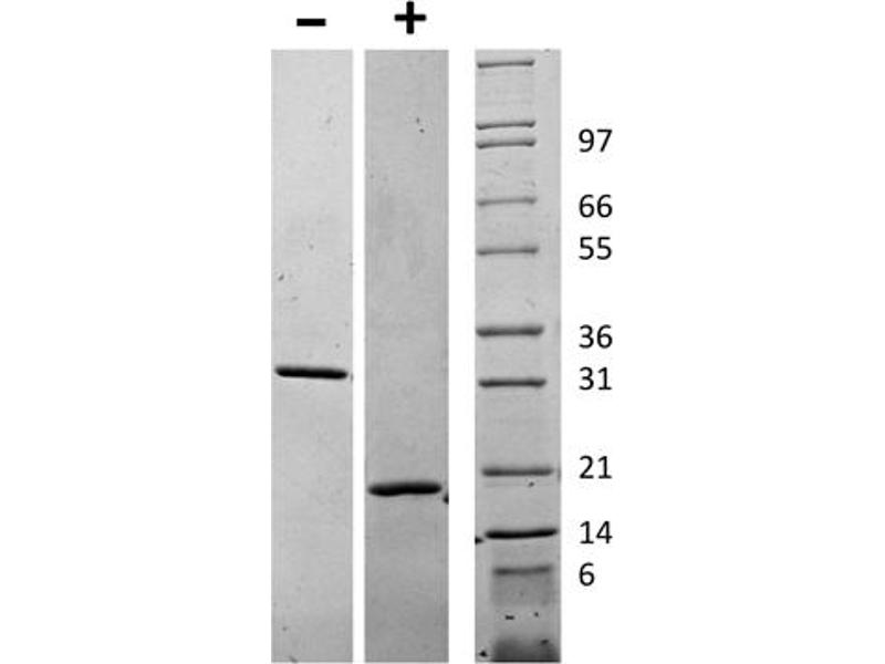 Image no. 1 for Colony Stimulating Factor 1 (Macrophage) (CSF1) protein (ABIN6699708)