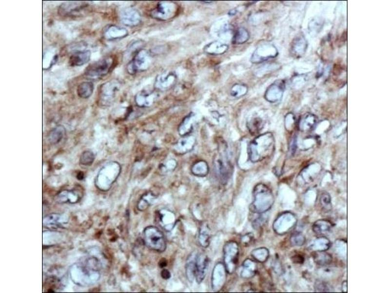 Immunohistochemistry (IHC) image for anti-Coagulation Factor XII (Hageman Factor) (F12) (AA 50-150), (Internal Region) Antikörper (ABIN4310032)