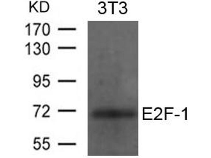 Image no. 1 for anti-E2F Transcription Factor 1 (E2F1) (AA 430-434) antibody (ABIN6267774)