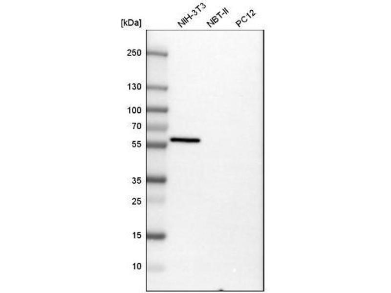 Western Blotting (WB) image for anti-Vimentin (VIM) antibody (ABIN4365306)