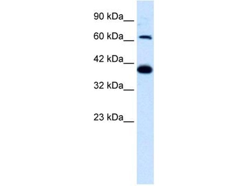 Western Blotting (WB) image for anti-Glutamate Receptor, Ionotropic, Kainate 2 (GRIK2) (N-Term) antibody (ABIN183187)