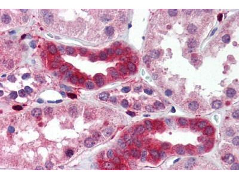 Immunohistochemistry (Paraffin-embedded Sections) (IHC (p)) image for anti-TGF-beta Activated Kinase 1/MAP3K7 Binding Protein 1 (TAB1) antibody (ABIN214510)