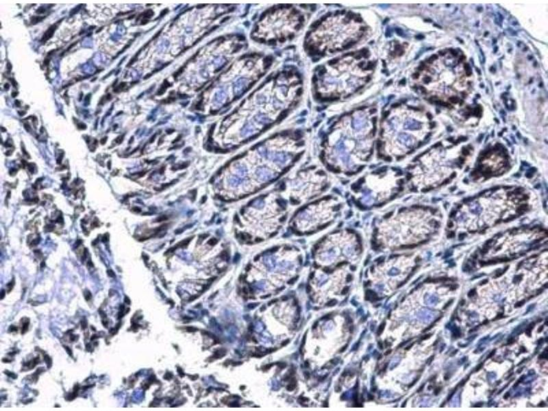 Immunohistochemistry (IHC) image for anti-Protein Inhibitor of Activated STAT, 4 (PIAS4) (C-Term) antibody (ABIN441248)