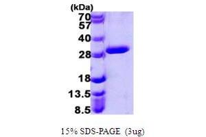 Image no. 1 for Uroporphyrinogen III Synthase (UROS) (AA 1-265) protein (His tag) (ABIN667456)