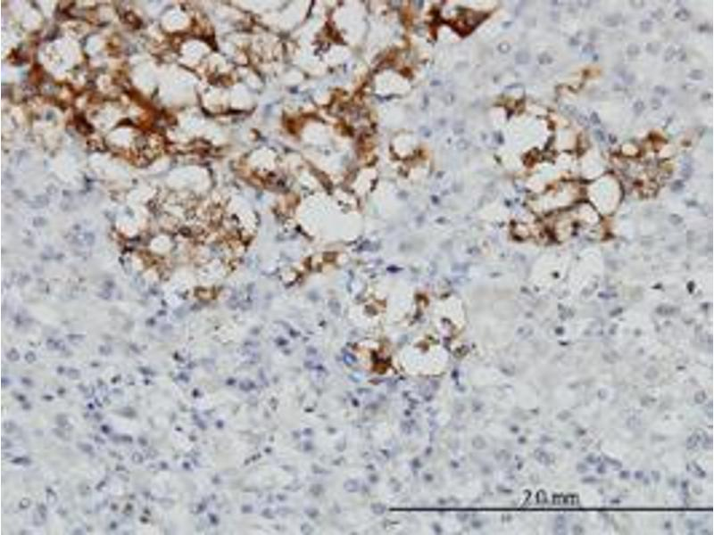 Immunohistochemistry (Paraffin-embedded Sections) (IHC (p)) image for anti-Decorin antibody (DCN) (AA 1-360) (ABIN396139)