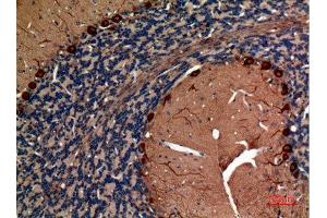Image no. 4 for anti-Aldolase C, Fructose-Bisphosphate (ALDOC) (N-Term) antibody (ABIN3187723)