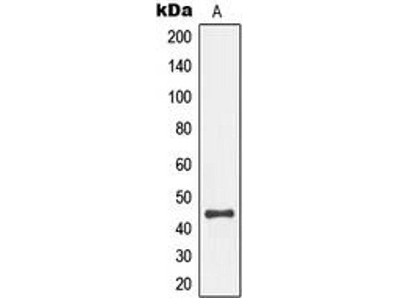 Western Blotting (WB) image for anti-MAP2K4 antibody (Mitogen-Activated Protein Kinase Kinase 4) (pSer80) (ABIN2706552)