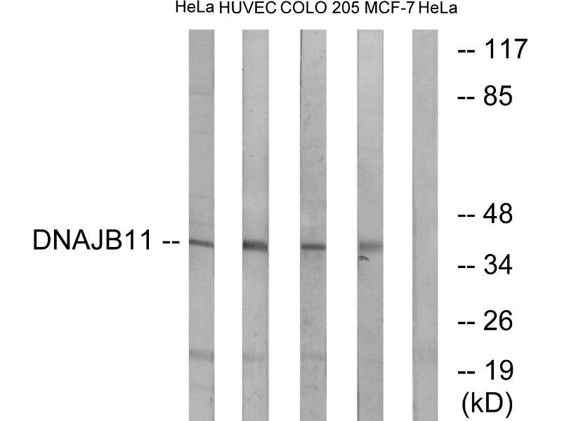 Image no. 1 for anti-DnaJ (Hsp40) Homolog, Subfamily B, Member 11 (DNAJB11) antibody (ABIN1576103)