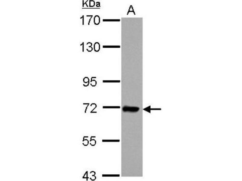 Western Blotting (WB) image for anti-Interleukin 1 Receptor Accessory Protein (IL1RAP) (Center) antibody (ABIN4324392)