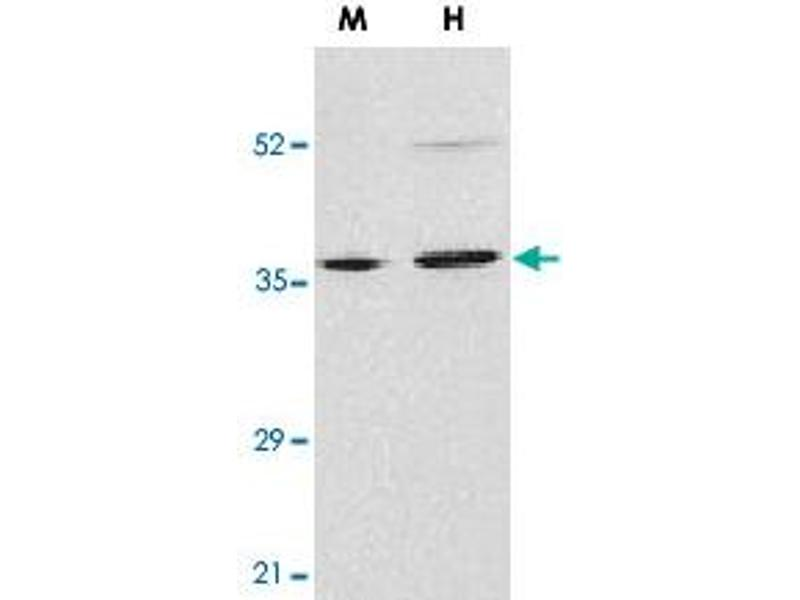 Western Blotting (WB) image for anti-Endonuclease G (ENDOG) antibody (ABIN541193)