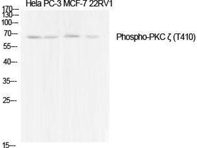 Western Blotting (WB) image for anti-Protein Kinase C, zeta (PRKCZ) (pThr410) antibody (ABIN3182128)