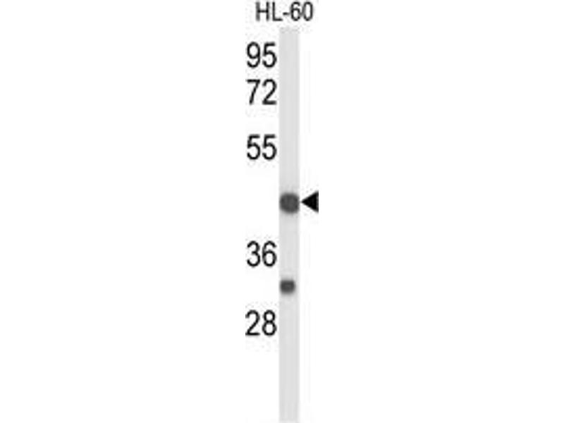 Western Blotting (WB) image for anti-TNFRSF10D antibody (Tumor Necrosis Factor Receptor Superfamily, Member 10d, Decoy with Truncated Death Domain) (AA 258-287) (ABIN951252)