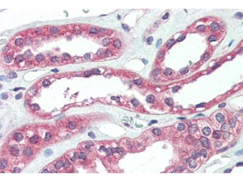 Image no. 1 for anti-rho Guanine Nucleotide Exchange Factor (GEF) 17 (ARHGEF17) (Internal Region) antibody (ABIN461906)