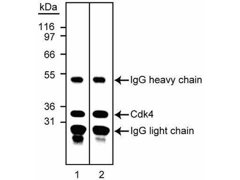 Western Blotting (WB) image for anti-CDK4 antibody (Cyclin-Dependent Kinase 4) (ABIN967647)