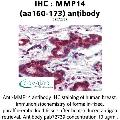 anti-MMP14 antibody (Matrix Metallopeptidase 14 (Membrane-inserted)) (AA 160-173)