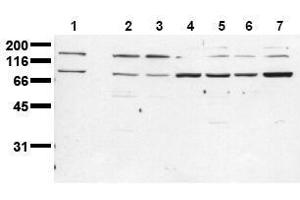 Western Blotting (WB) image for anti-Insulin Receptor (INSR) (Beta Chain) antibody (ABIN126820)