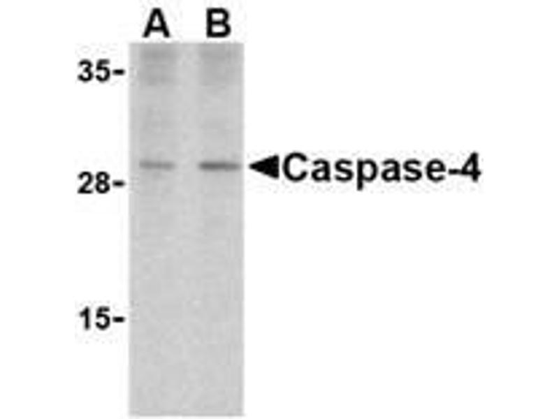 Western Blotting (WB) image for anti-Caspase 4 antibody (Caspase 4, Apoptosis-Related Cysteine Peptidase) (Intermediate Domain) (ABIN499563)
