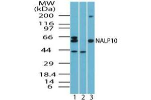 Image no. 1 for anti-NLR Family, Pyrin Domain Containing 10 (NLRP10) (AA 493-509) antibody (ABIN960280)
