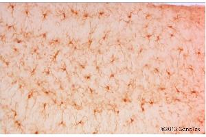 Immunohistochemistry (IHC) image for anti-Allograft Inflammatory Factor 1 (AIF1) (C-Term) antibody (ABIN2857032)