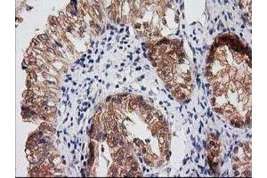 Immunohistochemistry (Paraffin-embedded Sections) (IHC (p)) image for anti-Ras Association (RalGDS/AF-6) Domain Family Member 1 (RASSF1) antibody (ABIN4349434)
