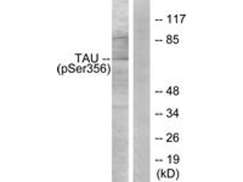 Western Blotting (WB) image for anti-MAPT antibody (Microtubule-Associated Protein tau) (pSer356) (ABIN1531989)