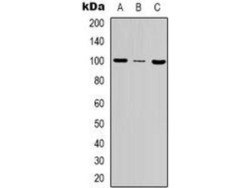 Western Blotting (WB) image for anti-MSH2 antibody (ABIN2801279)
