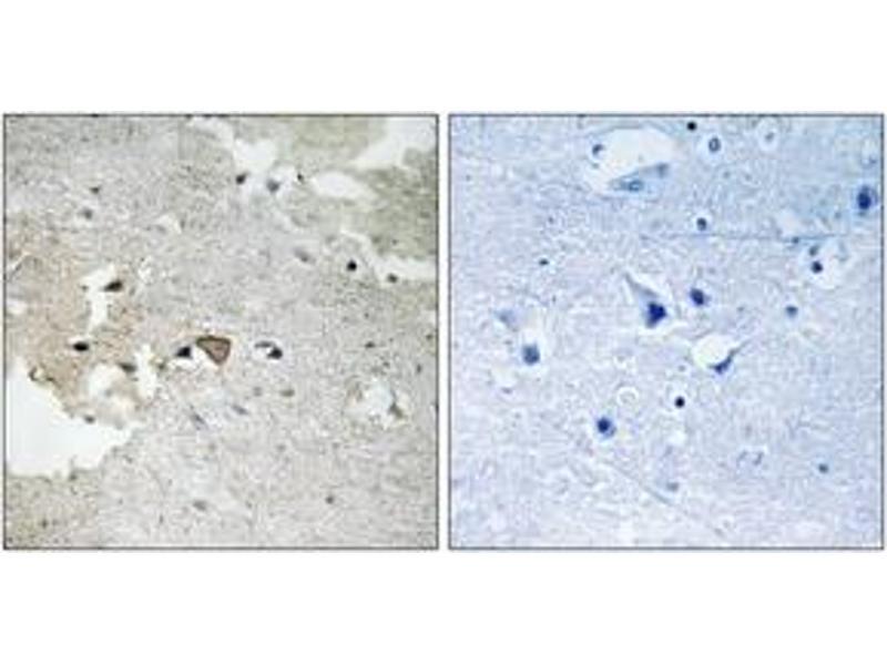 Immunohistochemistry (IHC) image for anti-AXL Antikörper (AXL Receptor tyrosine Kinase) (pTyr691) (ABIN1532036)