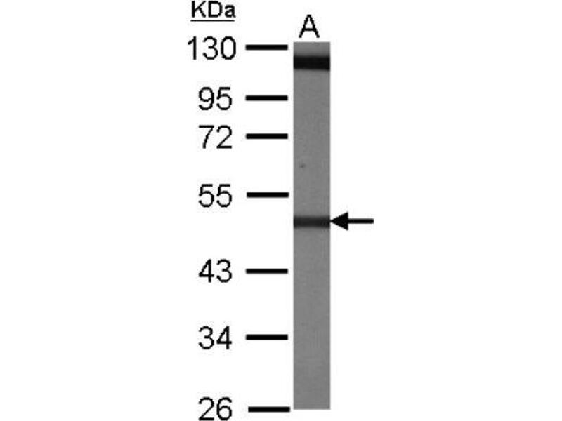 Western Blotting (WB) image for anti-TUBB5 antibody (Tubulin, Beta, 5) (Center) (ABIN442178)