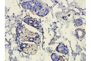 Immunohistochemistry (Paraffin-embedded Sections) (IHC (p)) image for anti-HMGB1 antibody (High-Mobility Group Box 1) (ABIN2506663)