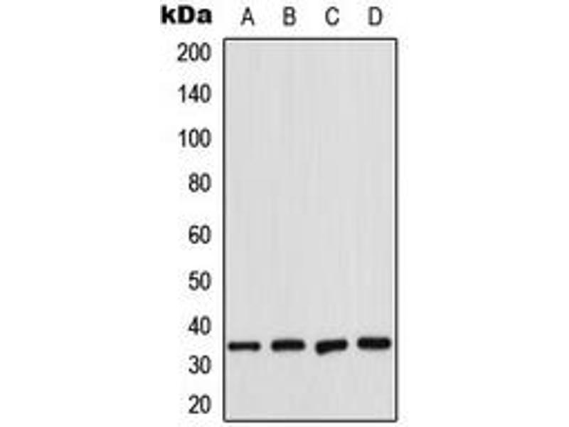 Western Blotting (WB) image for anti-Cyclin-Dependent Kinase 2 (CDK2) (Center) antibody (ABIN2705842)