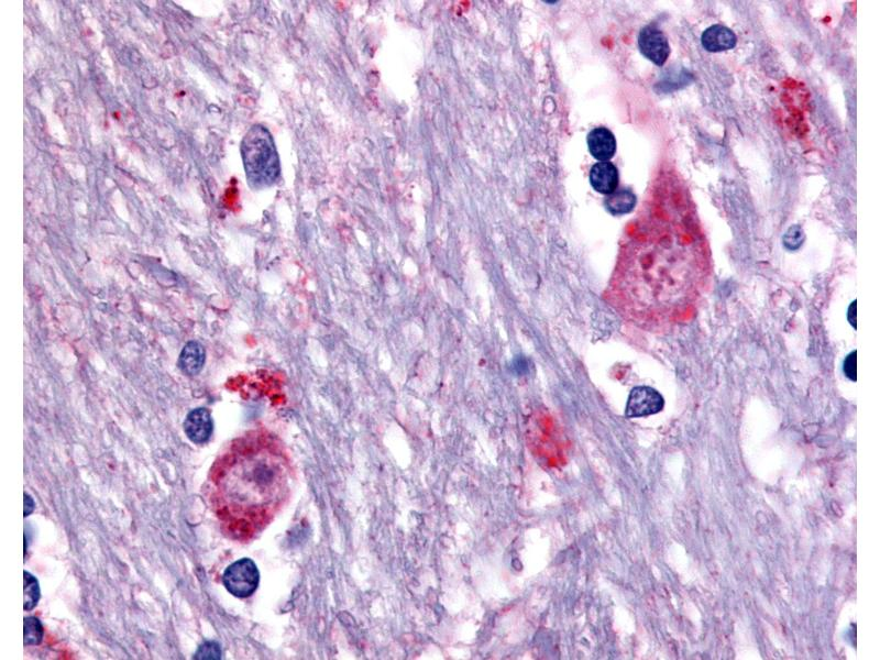 Immunohistochemistry (IHC) image for anti-Cholinergic Receptor, Muscarinic 3 (CHRM3) (Cytoplasmic Domain) antibody (ABIN213499)